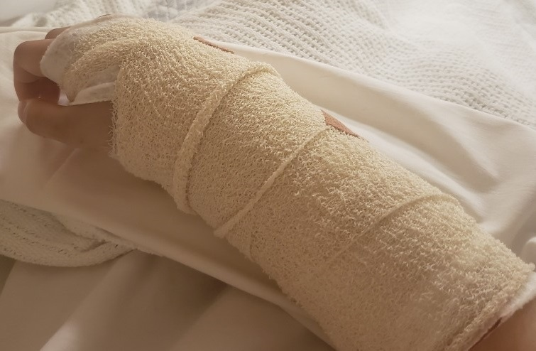 Slater and Gordon client Bruna's injured arm