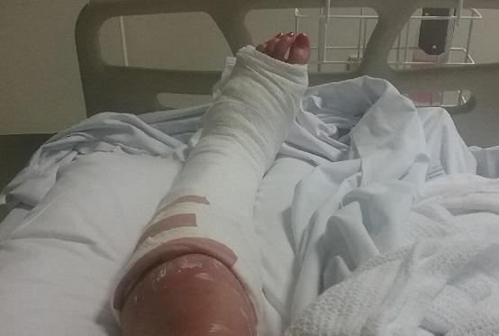 Juanita's bandaged leg after being struck by a car as a pedestrian